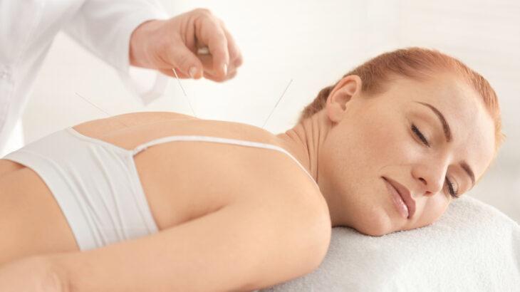 Combattere ansia e stress con l'agopuntura: i vantaggi della terapia