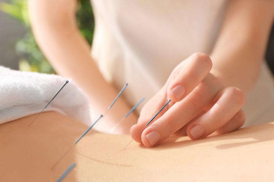 Dietologia e agopuntura: una coppia perfetta